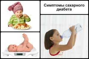 Симптоматика сахарного диабета у детей