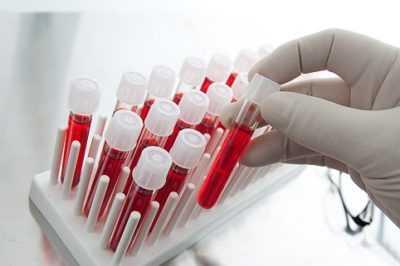 Гликированный гемоглобин и все что с ним связано