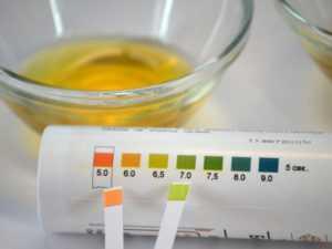 Ацетон (кетоновые тела) в моче – причины появления. Значения ацетона в моче