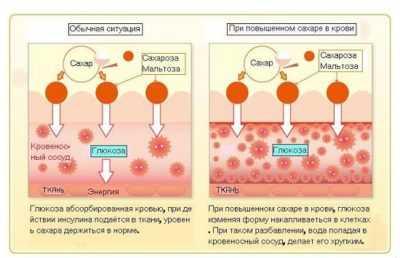 Сахарный диабет - как он проявляется при различных типах