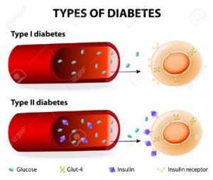 1 и 2 типы диабета