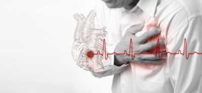 Инсульт (и сердечно-сосудистые заболевания) при сахарном диабете и его последствия