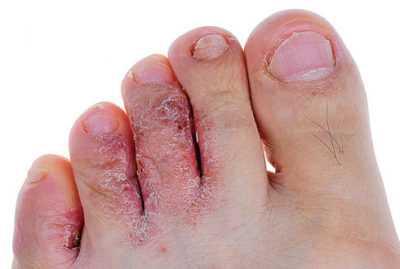 Повреждение ног у больных сахарным диабетом – серьёзная, но решаемая проблема