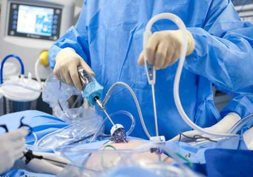 лапораскопия