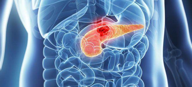 Как снять боль, и какие обезболивающие принять при остром панреатите?