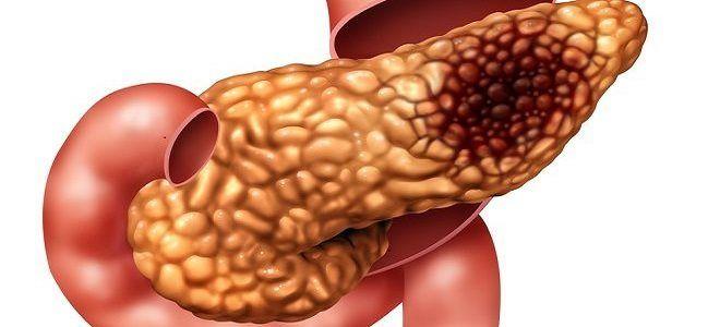 Изменения при фибролипоматозе поджелудочной железы — что это такое?