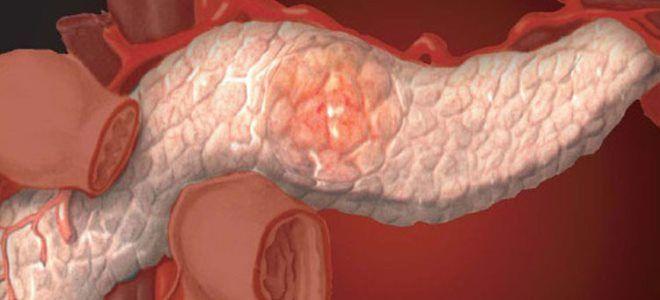 Что такое жидкость в полости поджелудочной железы, причины и лечение патологии