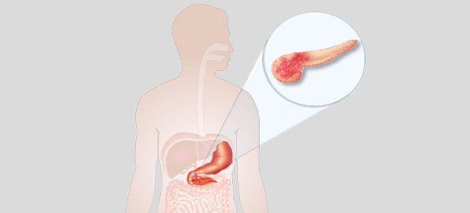 Значение диффузных изменений паренхимы поджелудочной железы