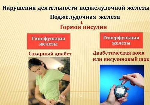 Гиперфункция и гипофункция поджелудочной железы