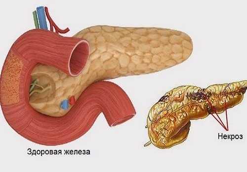 Некроз тканей железы