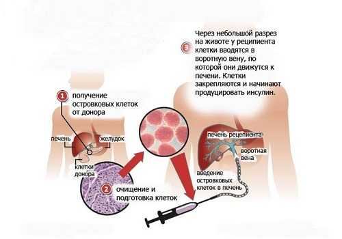 Трансплантация островковых клеток