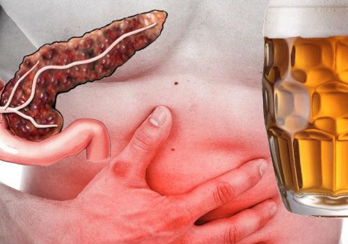 пиво и поджелудочная железа