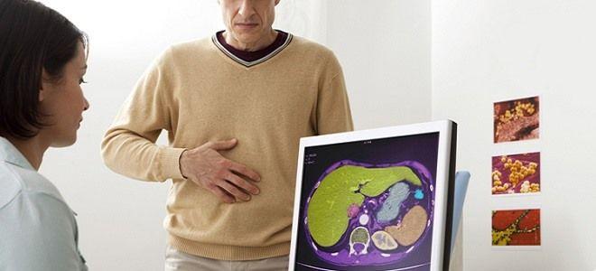 Симптоматика и причины панкреатита у мужчин