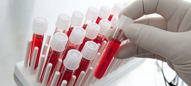Результаты исследований крови при развитии панкреатита