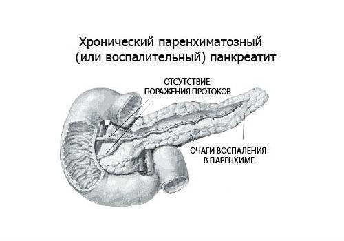 воспаление паренхимы поджелудочной