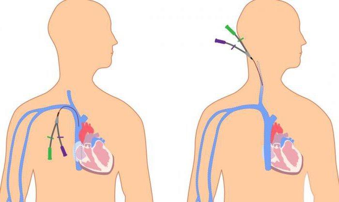 Постановка катетора в подключинную и яремную вены
