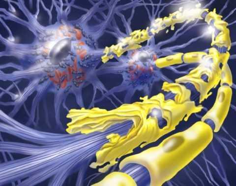 2 стадия нейропатии