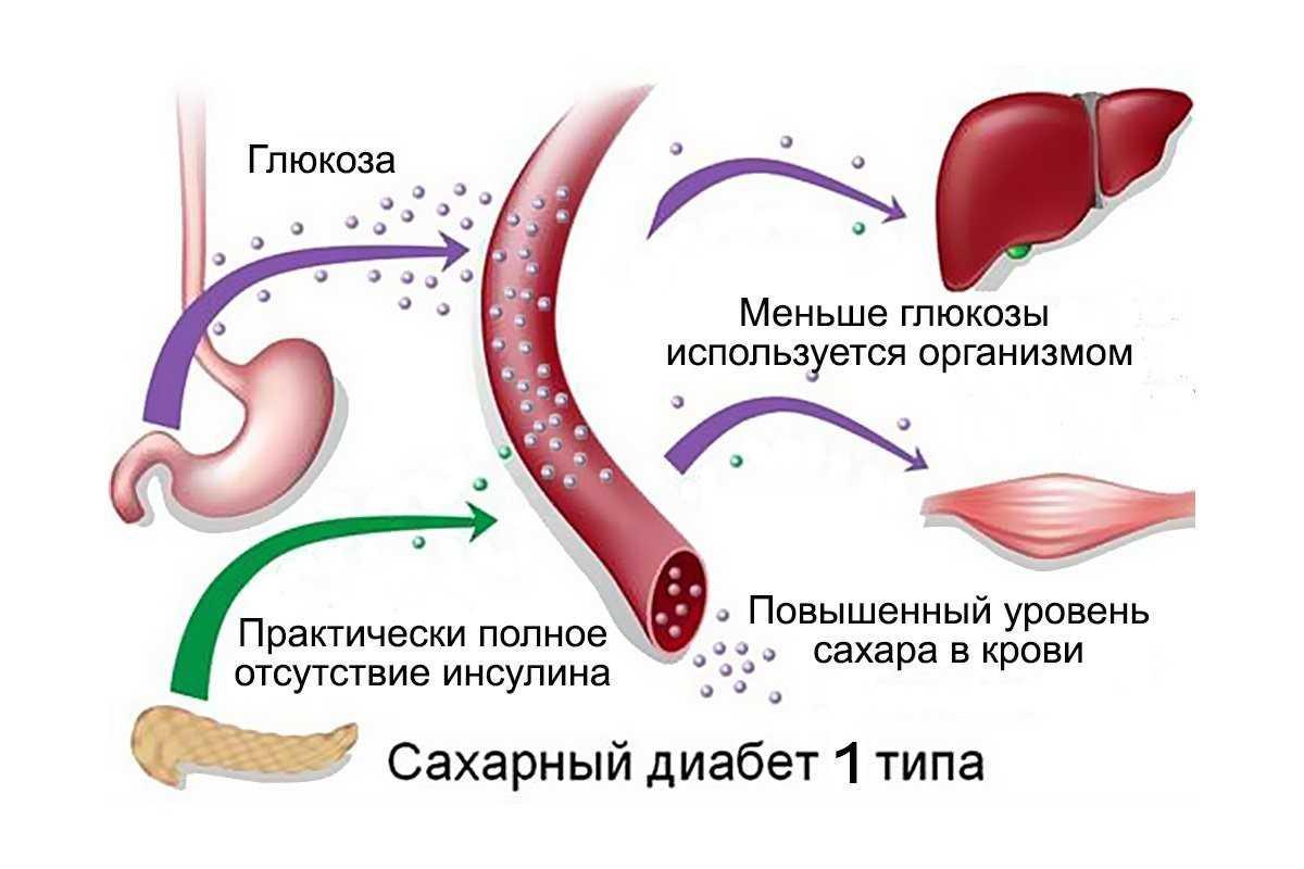 Механизм развития ИЗСД