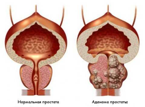 Аденома простаты и простатит – разные заболевания