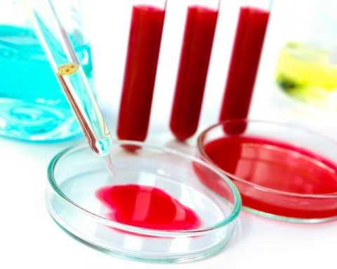 Анализ крови.