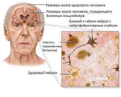 Анатомические изменения при болезни Альцгеймера