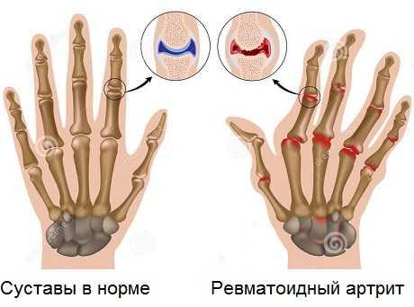 Анатомические изменения при ревматоидном артрите