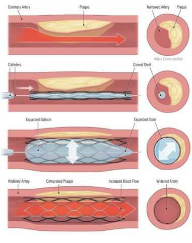Ангиопластика со стенированием