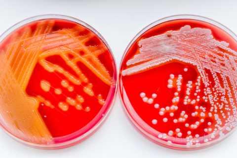 Бактериальные инфекции, поражающие кожный покров, приводят к самым тяжелым заболеваниям.