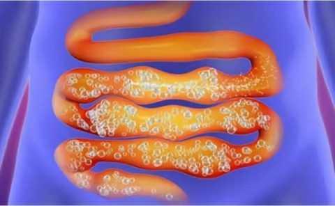 Большое количество арбузов может стать причиной повышенного газообразования.