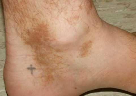 Частый симптом – потемнения на коже