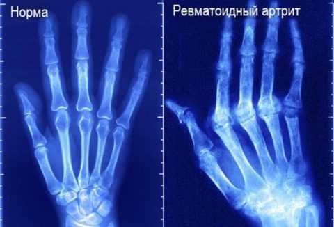 Данные рентгенографии.