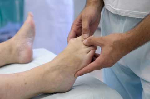 Деформация пальцев ног.