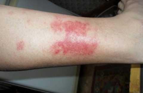 Дермопатия на нижних конечностях