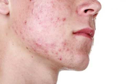 Диабет относится к числу причин, провоцирующих появление дерматологических проблем.