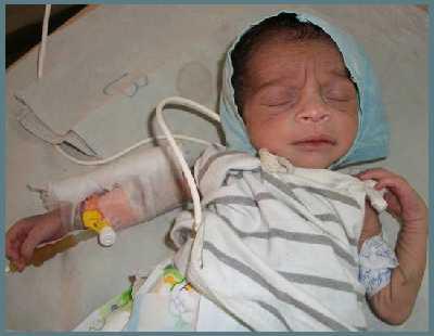 Диабет у новорожденных и грудничков