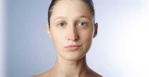 Дисфункция лицевых нервов проявляется видимой асимметрией на лице.