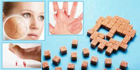 Этиология поражений кожи при СД – нарушение углеводно-липидного обмена