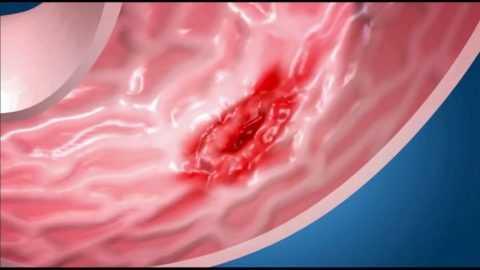 Гастрит может стать причиной язвы желудка.