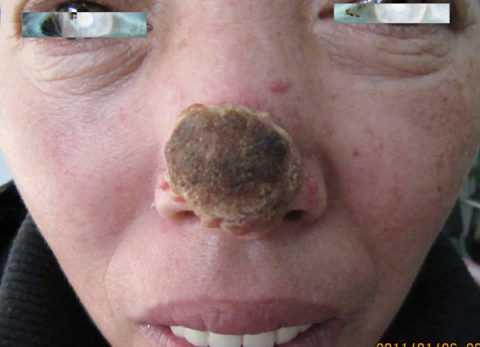 Глубокий мукороз носа