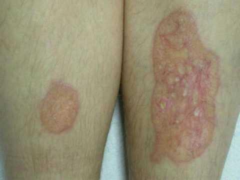 Характерная черта некробиоза липоидного – это появление за долго до первых симптомов СД.