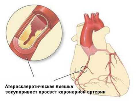 Холестериновая бляшка может полностью закупорить просвет артерии