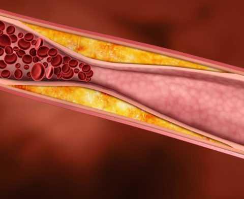 Холестериновые бляшки сужают просвет в сосудах