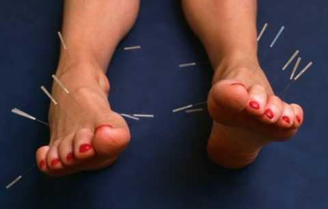 Иглоукалывание при развитии синдрома диабетической стопы
