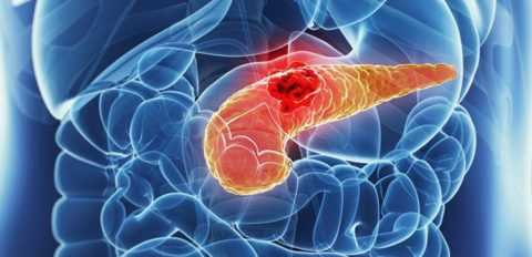 Инсулинома – довольно редкое, но весьма опасное заболевание.