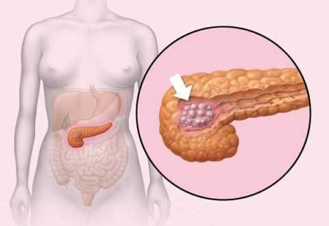 Инсулинома – это гормонально-активное воспаление β-клеток, которое приводит к избыточной выработке инсулина.