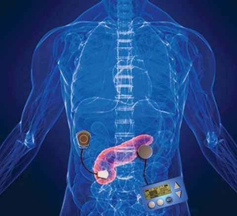 Искусственная поджелудочная железа – прорыв в лечении сахарного диабета.