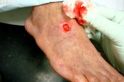Как проходит лечение трофических язв на ногах.