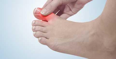 Консервативное лечение вросших ногтей доступно только на начальных стадиях патологического прогресса.