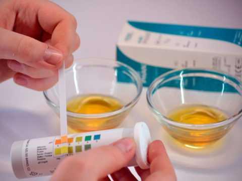 Контроль количества ацетона в моче
