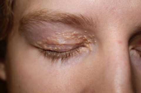 Кожные патологии при СД в области глаз